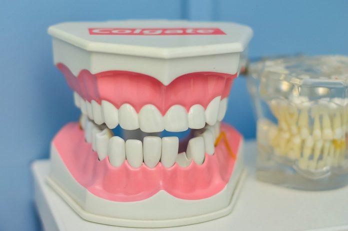 השתלת שיניים ממוחשבת – איך זה עובד?