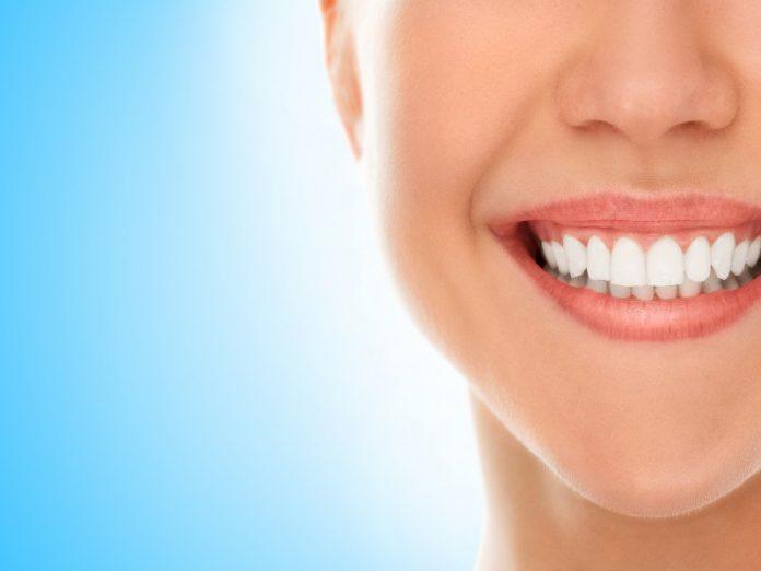 ציפוי שיניים בתל אביב