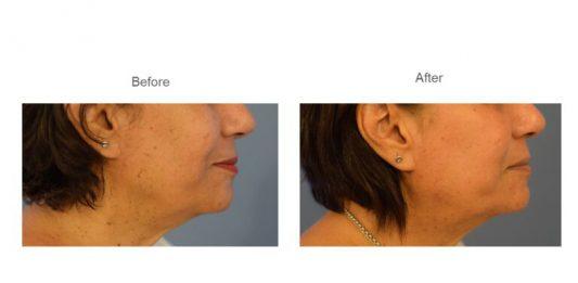 טיפול בפיגמנטציה והבהרת העור